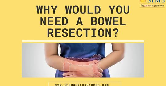 bowel resection