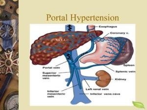 shunt surgery for portal hypertension