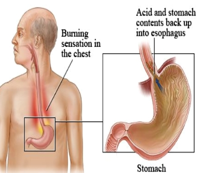 Corrosive Injury of the Stomach