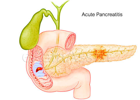 acute-pancreatitis1