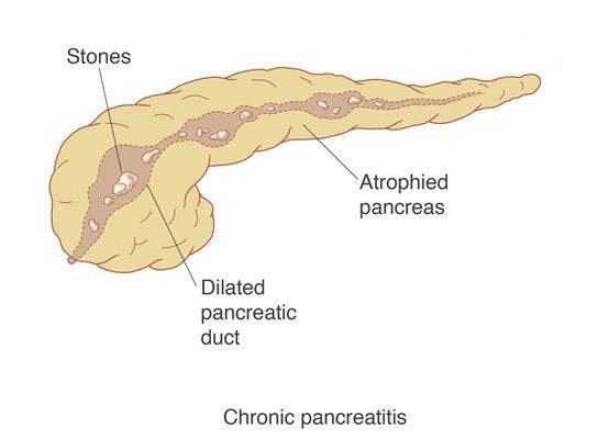Pancreatic cancer pancreatitis, Cancerul pancreatic Pancreatic cancer what causes it