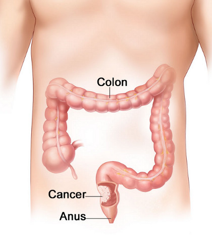 colon-cancer-05-13