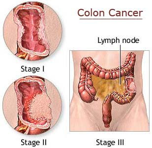 colon-cancer.png