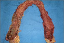 Surgery for ulcerative colitis