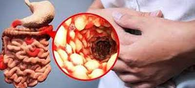 regional ileitis treatment chennai